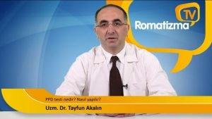 PPD testi nedir, nasıl yapılır, romatizma ile bağlantısı nedir